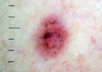 Basal Cell Skin Cancer 2